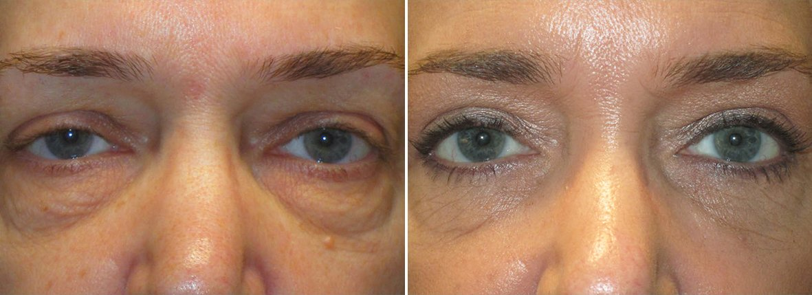49 year old female patient with upper blepharoplasty, lower blepharoplasty eyelid surgery, eye bag surgery, ptosis repair, and canthopexy surgery to lift and suspend drooping or sagging lower eyelids before and after recovery photo