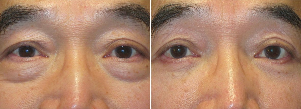 65 year old male patient with lower blepharoplasty eyelid surgery and eye bag surgery before and after recovery photo