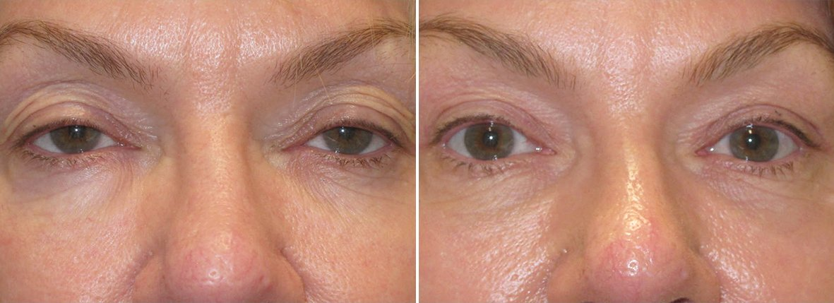 51 year old female patient with upper blepharoplasty eyelid surgery and ptosis repair before and after recovery photo