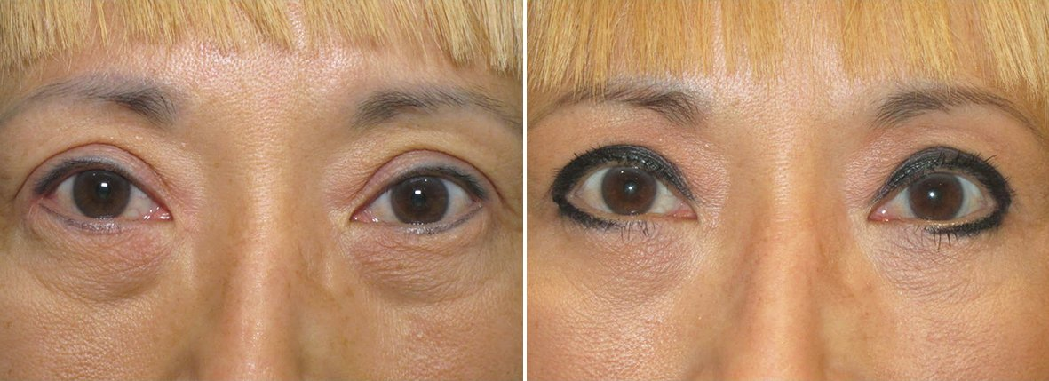 54 year old female patient with lower blepharoplasty eyelid surgery and eye bag surgery before and after recovery photo