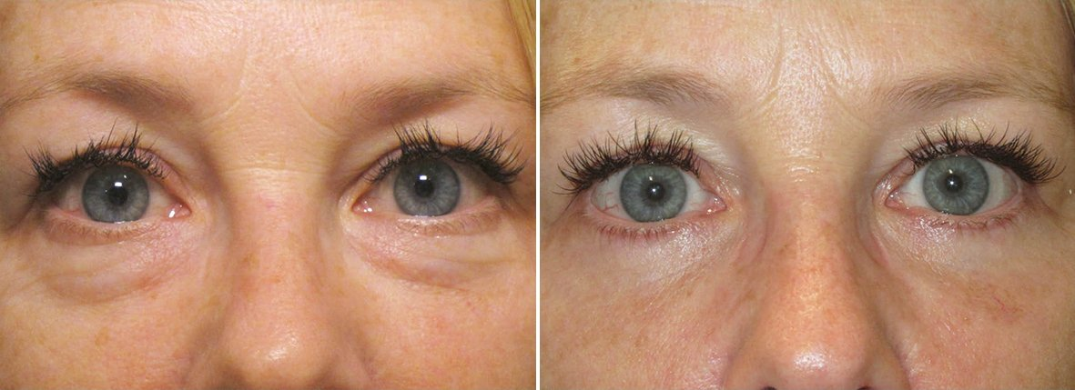 55 year old female patient with lower blepharoplasty eyelid surgery and eye bag surgery before and after recovery photo