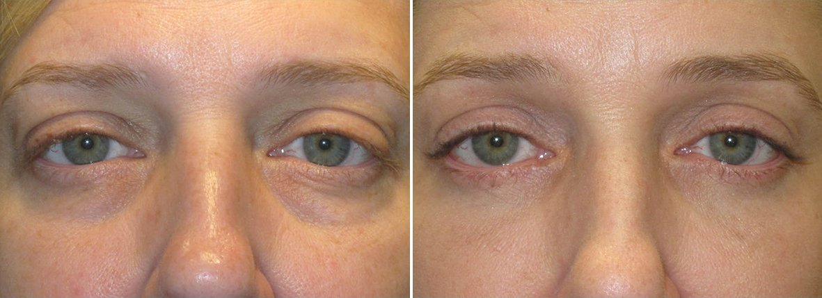 49 year old female patient with lower blepharoplasty eyelid surgery and eye bag surgery before and after recovery photo
