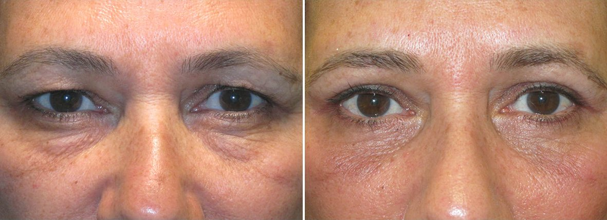 56 year old female patient with upper blepharoplasty, lower blepharoplasty eyelid surgery, eye bag surgery, and ptosis repair before and after recovery photo