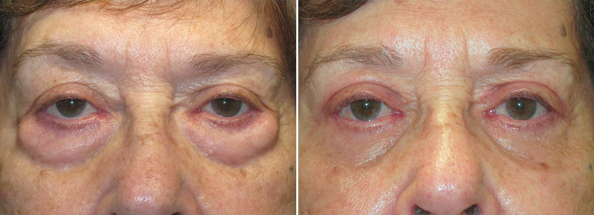 73 year old female patient with lower blepharoplasty eyelid surgery and eye bag surgery before and after recovery photo