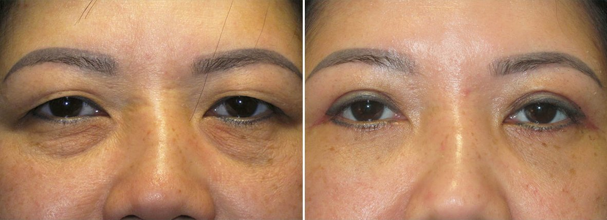 41 year old female patient with upper blepharoplasty, lower blepharoplasty eyelid surgery, and eye bag surgery before and after recovery photo