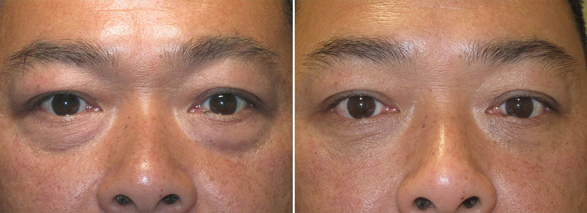 47 year old male patient with lower blepharoplasty eyelid surgery and eye bag surgery before and after recovery photo
