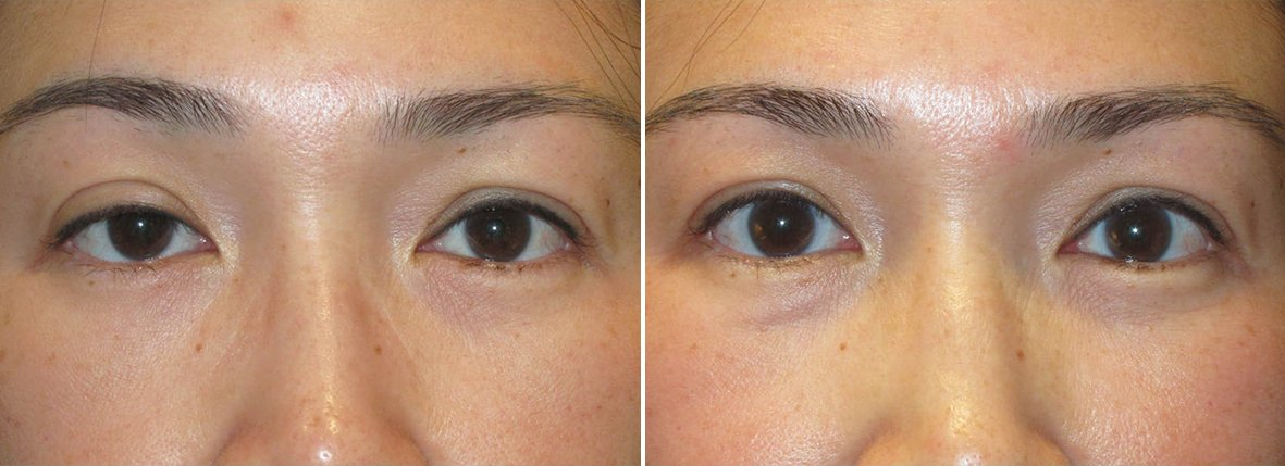 45 year old female patient with right upper lid ptosis repair before and after recovery photo