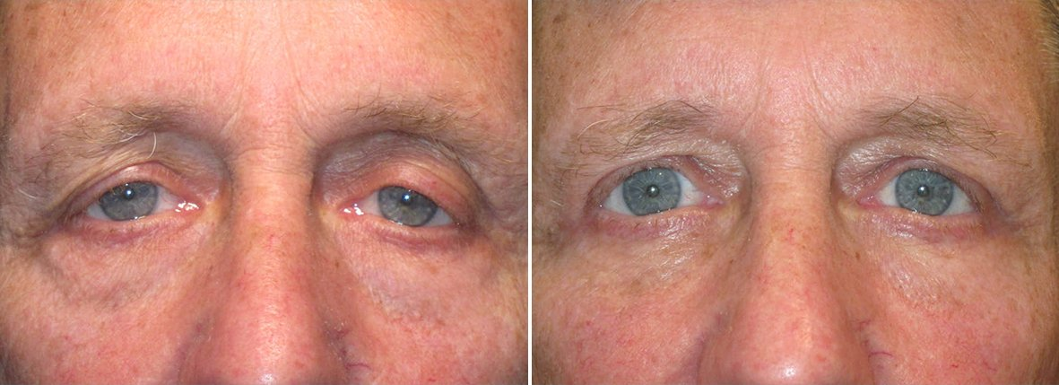 70 year old male patient with upper blepharoplasty, lower blepharoplasty eyelid surgery, eye bag surgery, and ptosis repair before and after recovery photo