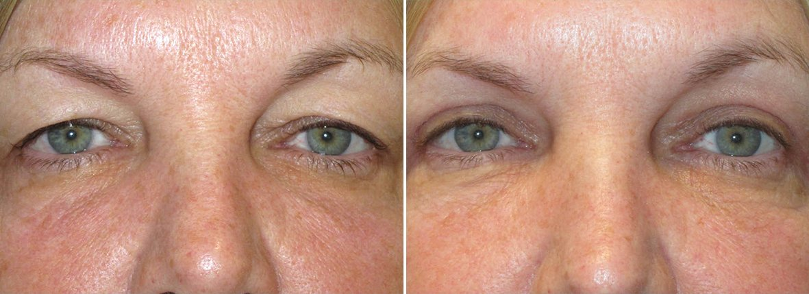 56 year old female patient with upper blepharoplasty eyelid surgery and ptosis repair before and after recovery photo