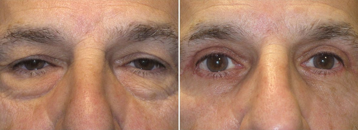 67 year old male patient with upper blepharoplasty, lower blepharoplasty eyelid surgery, eye bag surgery, ptosis repair, and canthopexy surgery to lift and suspend drooping or sagging lower eyelids before and after recovery photo