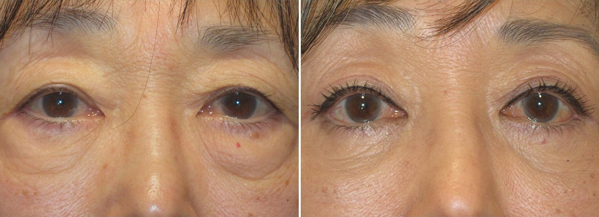 67 year old female patient with upper blepharoplasty, lower blepharoplasty eyelid surgery, eye bag surgery, and canthopexy surgery to lift and suspend drooping or sagging lower eyelids before and after recovery photo