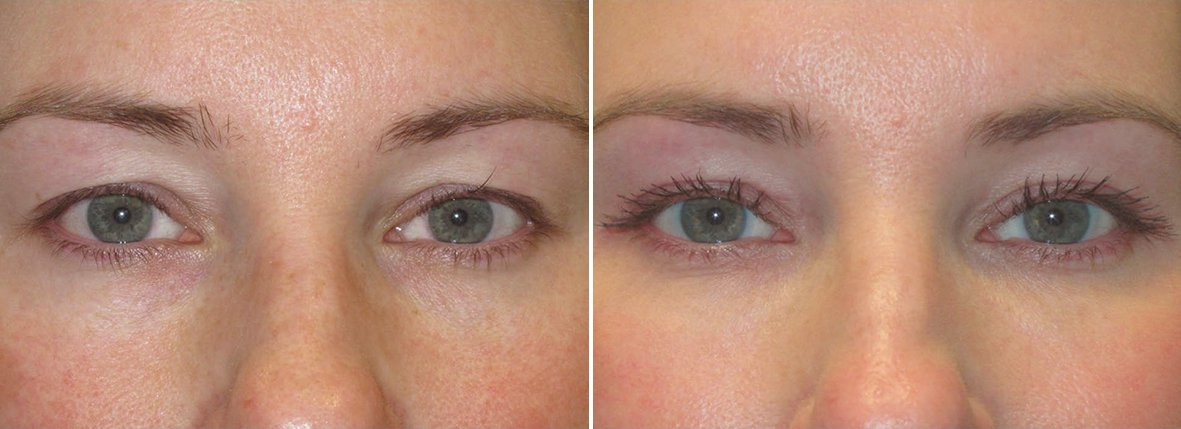 43 year old female patient with upper blepharoplasty eyelid surgery before and after recovery photo