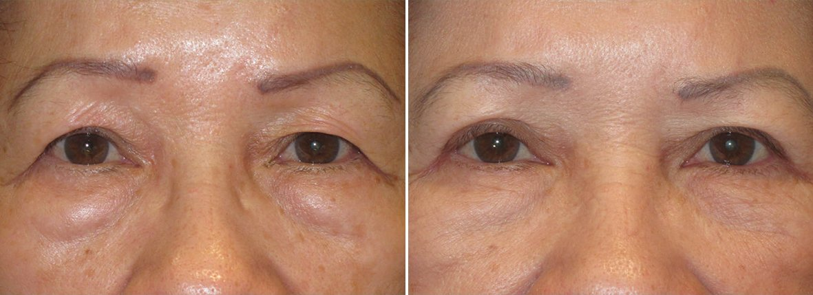75 year old female patient with upper blepharoplasty, lower blepharoplasty eyelid surgery, and eye bag surgery before and after recovery photo