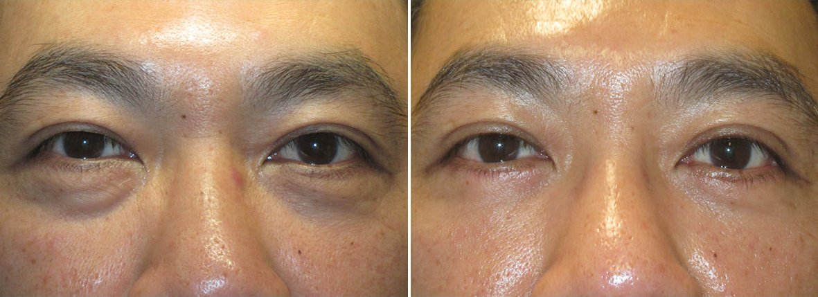 48 year old male patient with lower blepharoplasty eyelid surgery and eye bag surgery before and after recovery photo
