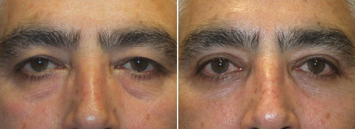 57 year old male patient with upper blepharoplasty, lower blepharoplasty eyelid surgery, eye bag surgery, and ptosis repair before and after recovery photo