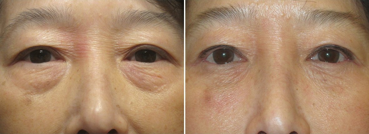 64 year old female patient with lower blepharoplasty eyelid surgery and eye bag surgery before and after recovery photo