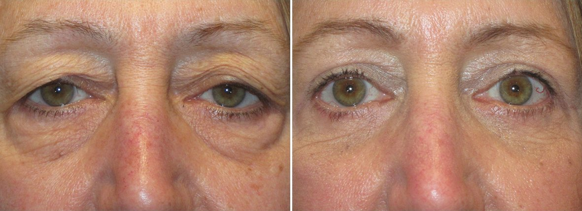 65 year old female patient with upper blepharoplasty, lower blepharoplasty eyelid surgery, and eye bag surgery before and after recovery photo