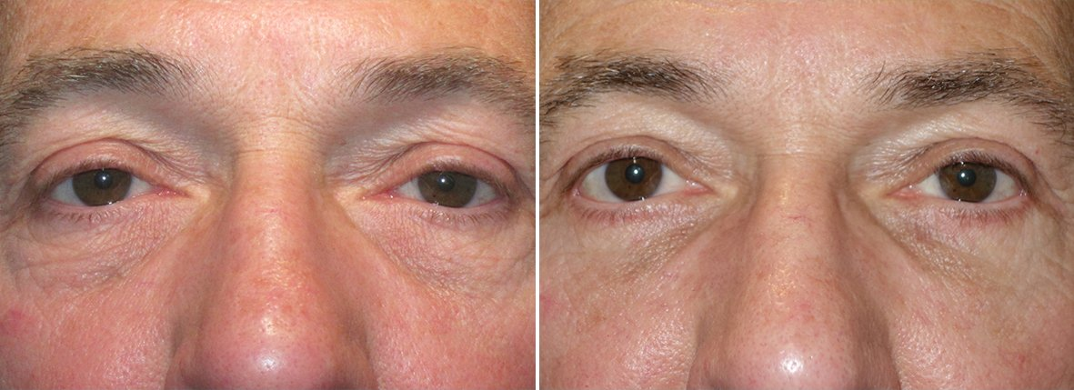 64 year old male patient with lower blepharoplasty eyelid surgery, eye bag surgery, ptosis repair, and canthopexy surgery to lift and suspend drooping or sagging lower eyelids before and after recovery photo