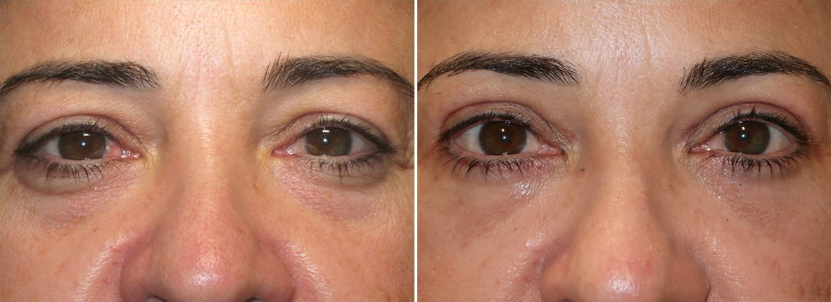 48 year old female patient with upper blepharoplasty, lower blepharoplasty eyelid surgery, and eye bag surgery before and after recovery photo