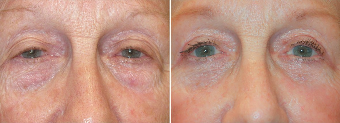 74 year old female patient with upper blepharoplasty, lower blepharoplasty eyelid surgery, eye bag surgery, and canthopexy surgery to lift and suspend drooping or sagging lower eyelids before and after recovery photo