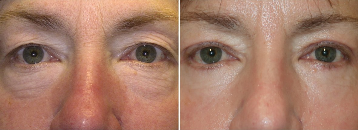 62 year old female patient with upper blepharoplasty, lower blepharoplasty eyelid surgery, and eye bag surgery before and after recovery photo