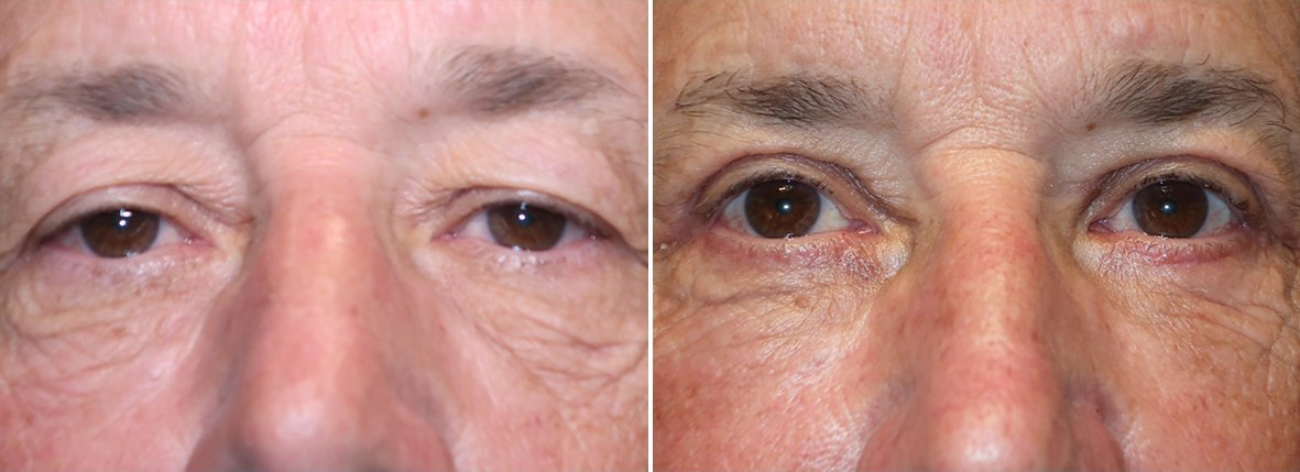 61 year old male patient with upper blepharoplasty, lower blepharoplasty eyelid surgery, eye bag surgery, ptosis repair, and canthopexy surgery to lift and suspend drooping or sagging lower eyelids before and after recovery photo