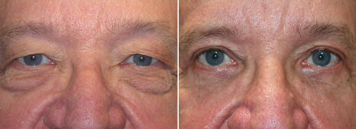 74 year old male patient with upper blepharoplasty, lower blepharoplasty eyelid surgery, eye bag surgery, and canthopexy surgery to lift and suspend drooping or sagging lower eyelids before and after recovery photo