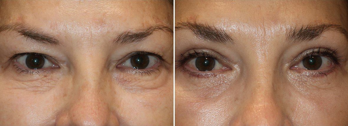 60 year old female patient with upper blepharoplasty, lower blepharoplasty eyelid surgery, eye bag surgery, and canthopexy surgery to lift and suspend drooping or sagging lower eyelids before and after recovery photo