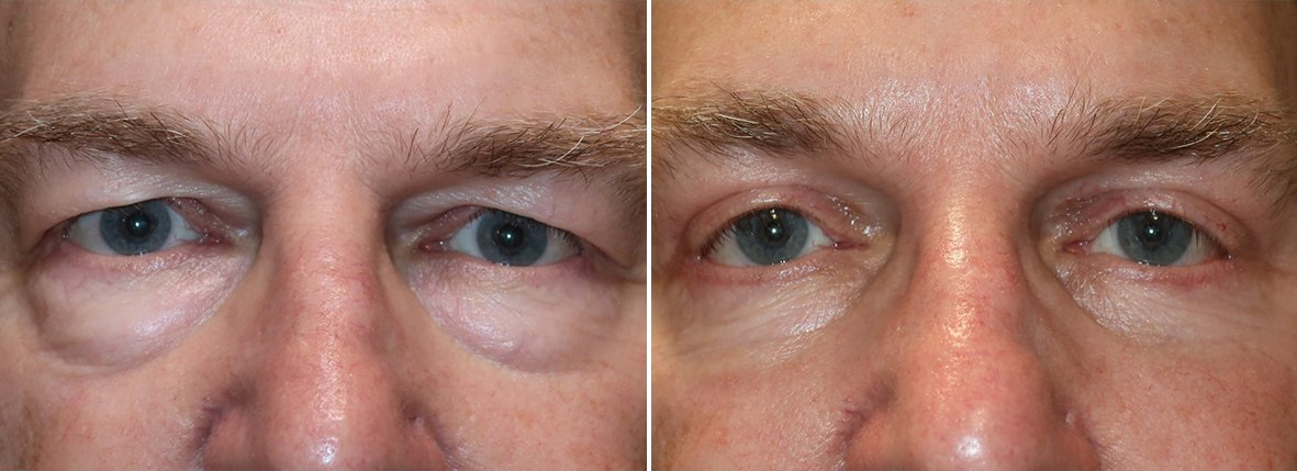 69 year old male patient with upper blepharoplasty, lower blepharoplasty eyelid surgery, eye bag surgery, and canthoplasty surgery before and after recovery photo