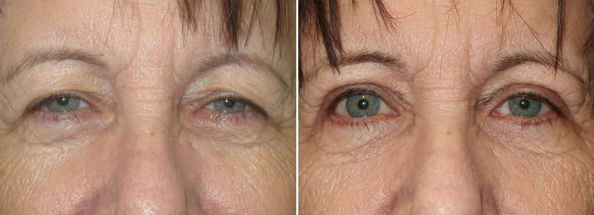 66 year old female patient with upper blepharoplasty, lower blepharoplasty eyelid surgery, eye bag surgery, and ptosis repair before and after recovery photo
