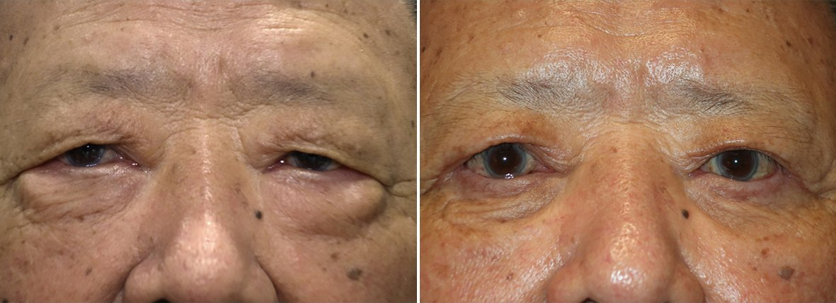 82 year old male patient with upper blepharoplasty, lower blepharoplasty eyelid surgery, eye bag surgery, and ptosis repair before and after recovery photo