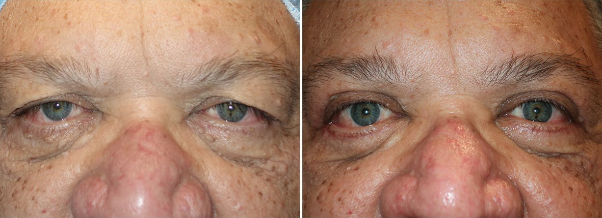 66 year old male patient with upper blepharoplasty, lower blepharoplasty eyelid surgery, eye bag surgery, ptosis repair, and canthopexy surgery to lift and suspend drooping or sagging lower eyelids before and after recovery photo