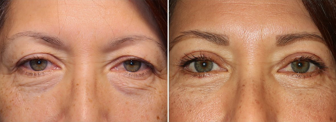 58 year old female patient with upper blepharoplasty, lower blepharoplasty eyelid surgery, and eye bag surgery before and after recovery photo