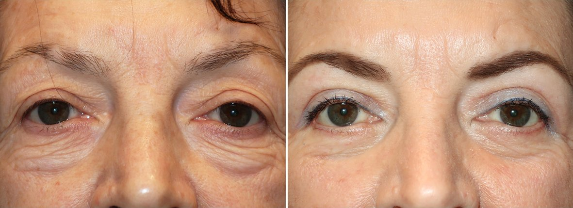 62 year old female patient with upper blepharoplasty, lower blepharoplasty eyelid surgery, eye bag surgery, and canthopexy surgery to lift and suspend drooping or sagging lower eyelids before and after recovery photo