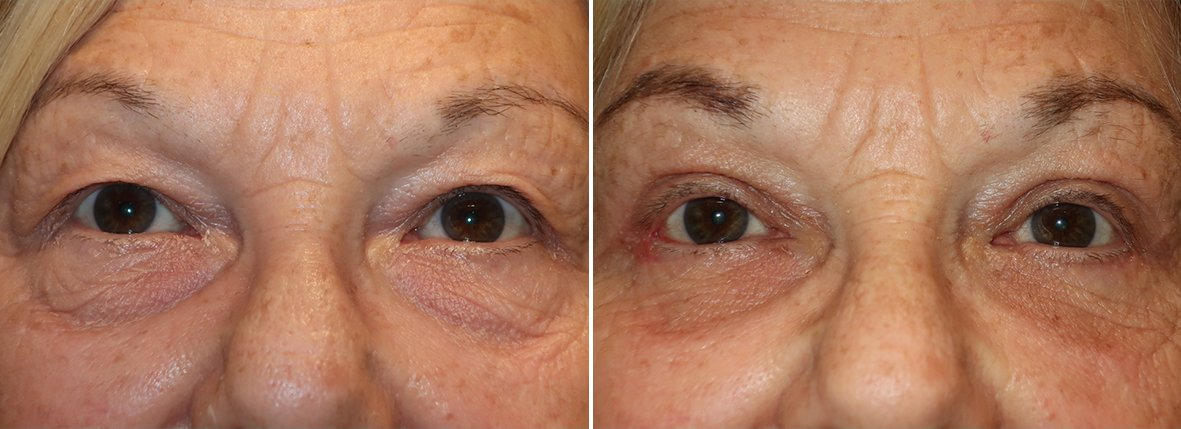66 year old female patient with upper blepharoplasty, lower blepharoplasty eyelid surgery, eye bag surgery, and canthopexy surgery to lift and suspend drooping or sagging lower eyelids before and after recovery photo