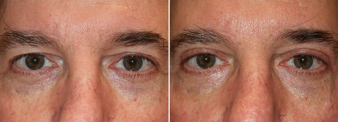 58 year old male patient with upper blepharoplasty eyelid surgery before and after recovery photo