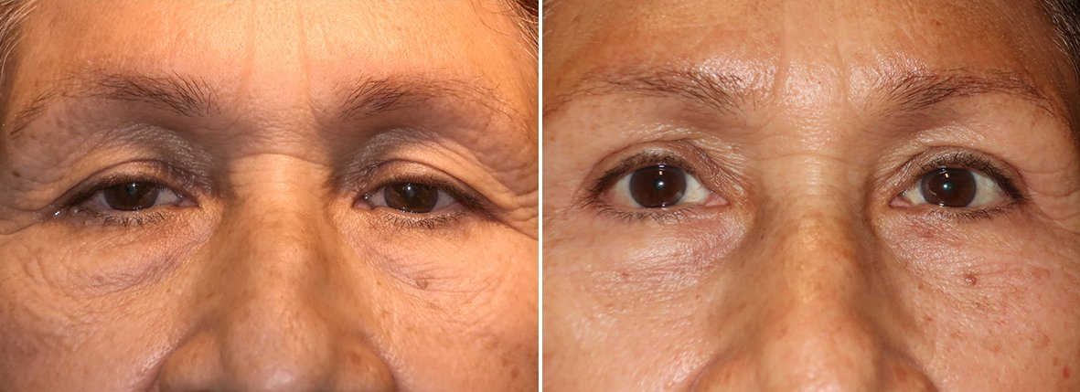 63 year old female patient with upper blepharoplasty, lower blepharoplasty eyelid surgery, eye bag surgery, and canthopexy surgery to lift and suspend drooping or sagging lower eyelids before and after recovery photo