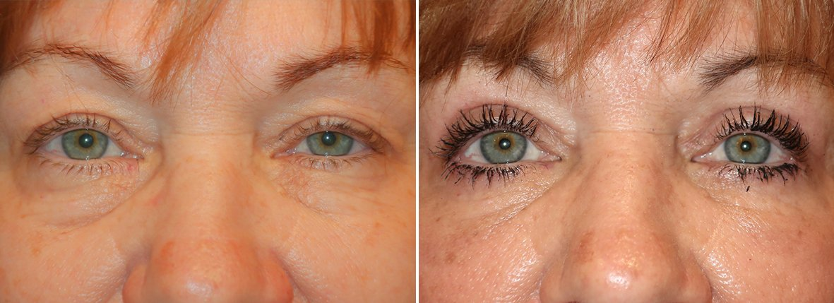 59 year old female patient with upper blepharoplasty, lower blepharoplasty eyelid surgery, eye bag surgery, and canthopexy surgery to lift and suspend drooping or sagging lower eyelids before and after recovery photo