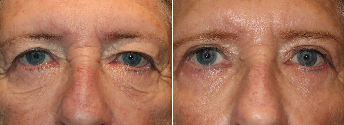 70 year old female patient with upper blepharoplasty, lower blepharoplasty eyelid surgery, eye bag surgery, and canthopexy surgery to lift and suspend drooping or sagging lower eyelids before and after recovery photo