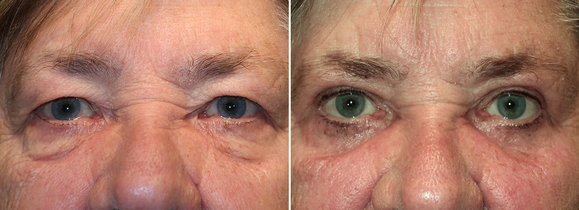 72 year old female patient with upper blepharoplasty, lower blepharoplasty eyelid surgery, eye bag surgery, and canthopexy surgery to lift and suspend drooping or sagging lower eyelids before and after recovery photo