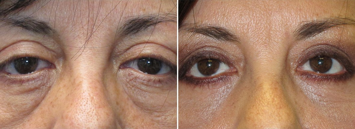 54 year old female patient with upper blepharoplasty, lower blepharoplasty eyelid surgery, eye bag surgery, ptosis repair, and canthopexy surgery to lift and suspend drooping or sagging lower eyelids before and after recovery photo