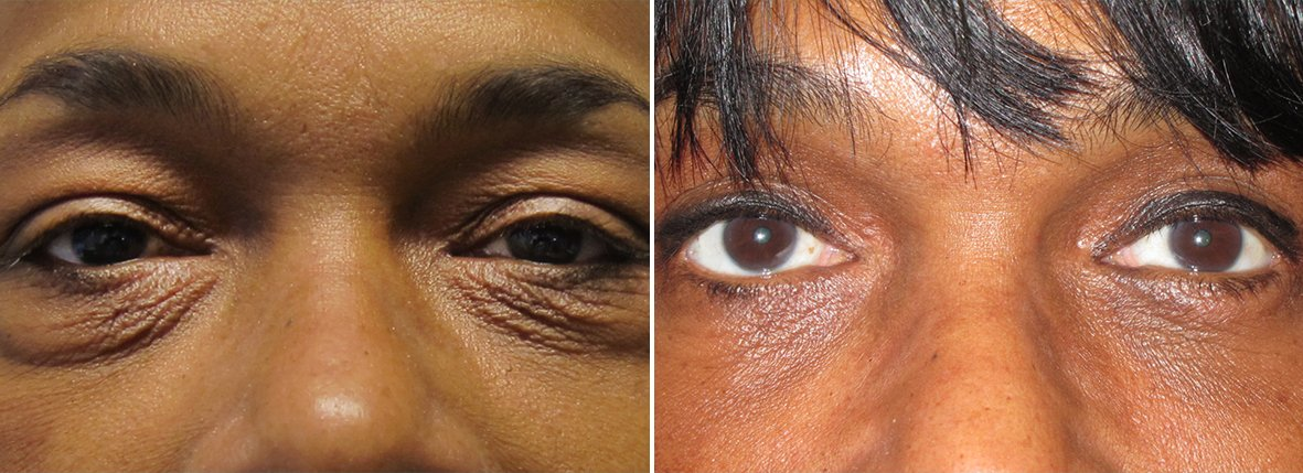 57 year old female patient with upper blepharoplasty, lower blepharoplasty eyelid surgery, eye bag surgery, and ptosis repair before and after recovery photo