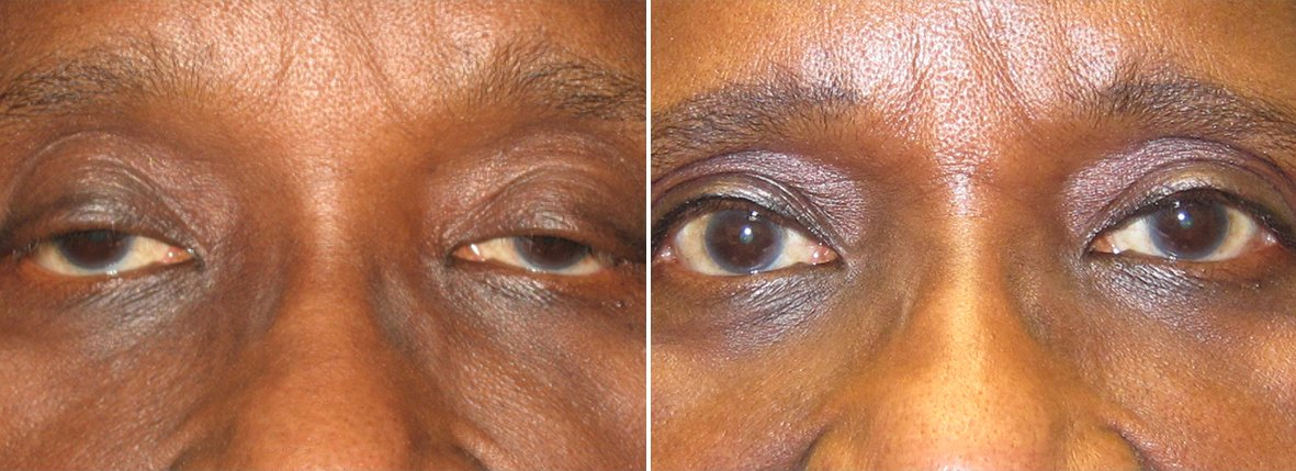 68 year old female patient with ptosis repair before and after recovery photo