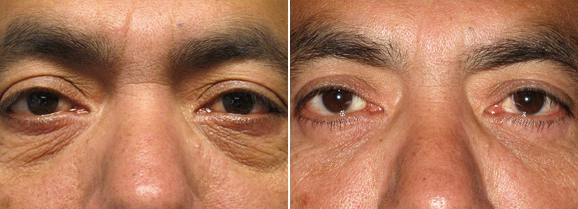 49 year old male patient with lower blepharoplasty eyelid surgery and eye bag surgery before and after recovery photo