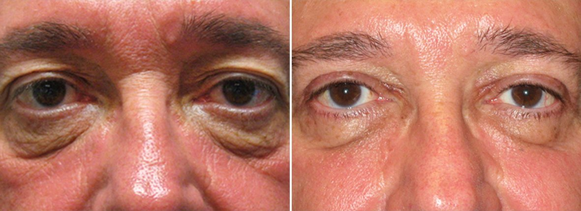 57 year old male patient with upper blepharoplasty, lower blepharoplasty eyelid surgery, and eye bag surgery before and after recovery photo