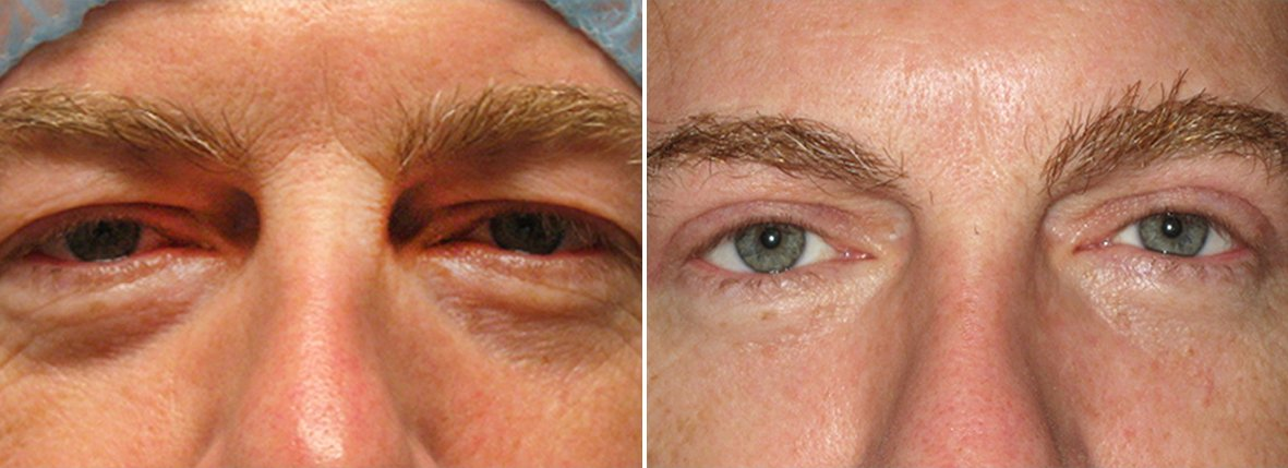 53 year old male patient with upper blepharoplasty, lower blepharoplasty eyelid surgery, eye bag surgery, and ptosis repair before and after recovery photo