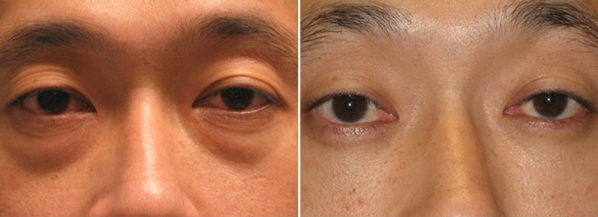 34 year old male patient with lower blepharoplasty eyelid surgery and eye bag surgery before and after recovery photo