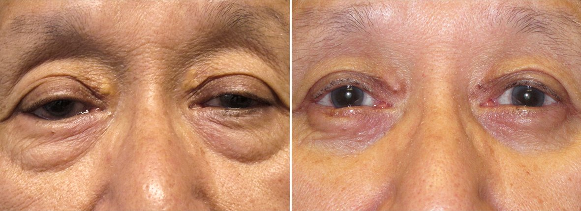 68 year old male patient with upper blepharoplasty, lower blepharoplasty eyelid surgery, eye bag surgery, ptosis repair, and right lower lid entropion repair before and after recovery photo