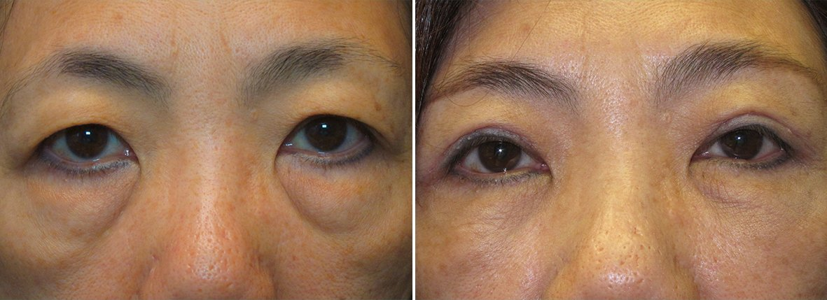 55 year old female patient with upper blepharoplasty double eyelid surgery, lower blepharoplasty eyelid surgery, and eye bag surgery before and after recovery photo