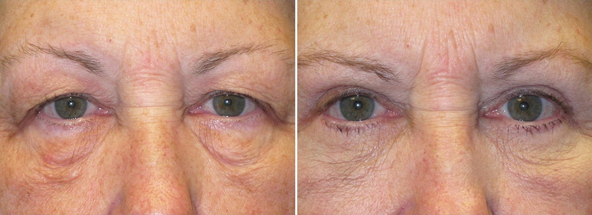 72 year old female patient with upper blepharoplasty, lower blepharoplasty eyelid surgery, eye bag surgery, ptosis repair, and canthopexy surgery to lift and suspend drooping or sagging lower eyelids before and after recovery photo